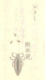 053_2microscope_chufuzusetsu_hito_3